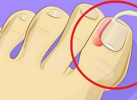 Ecco come curare a casa l'unghia incarnita. Nessun bisogno di interventi chirurgici.