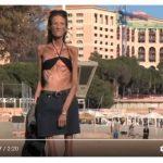 la donna più anoressica del mondo,Valeria Levitina, una ragazza di 39 anni totalmente divorata dall'anoressia.