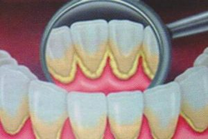 Eliminare il tartaro dei denti in modo naturale