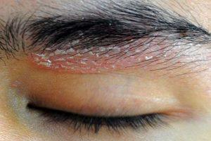 Dermatite seborroica: cause, sintomi e rimedi