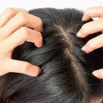 Nuova tecnica fa ricrescere i capelli all'80% dei pazienti sotto cura.